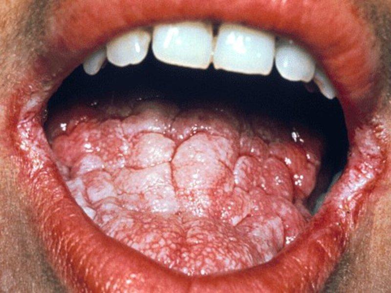 Молочница на языке у взрослых и детей симптомы лечение