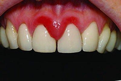 Чем лечить натертости от зубных протезов. Что делать, если десна воспалилась под зубным протезом