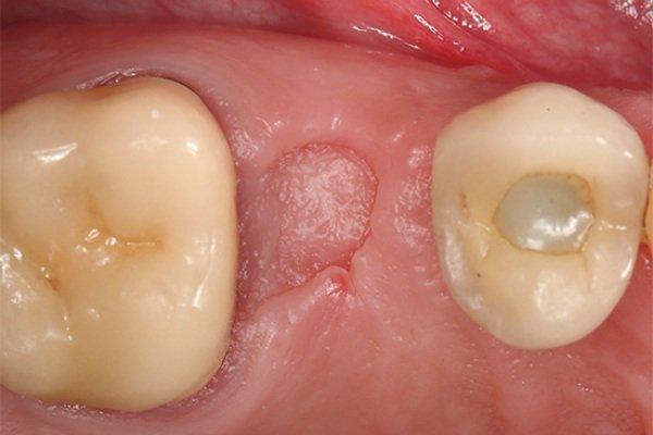 После удаления зуба что то белое торчит. На месте удаленного хирургом зуба появился белый налёт