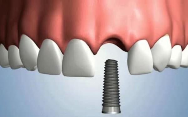 دندان لوله کشی به جای مولر