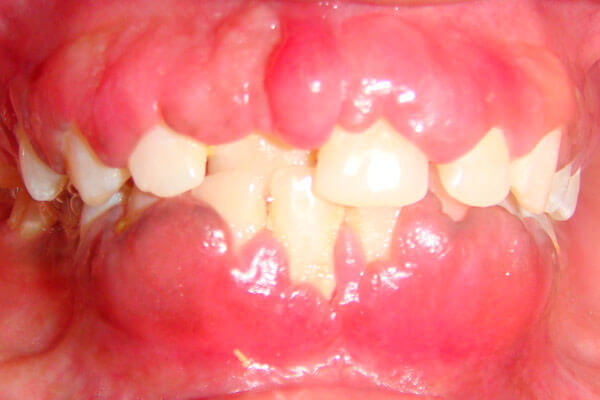 Болит щека изнутри больно открывать рот. Почему возникает воспаление с внутренней стороны щеки и как его лечить