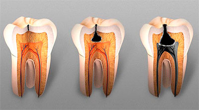 Симптомы пульпита: что важно знать при сильных болях в зубе. Разница между кариесом и пульпитом