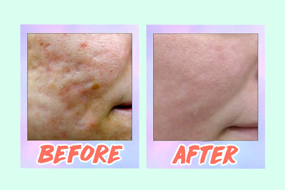 5 Acne Scar Laser Treatments In Singapore From S 88 That Work