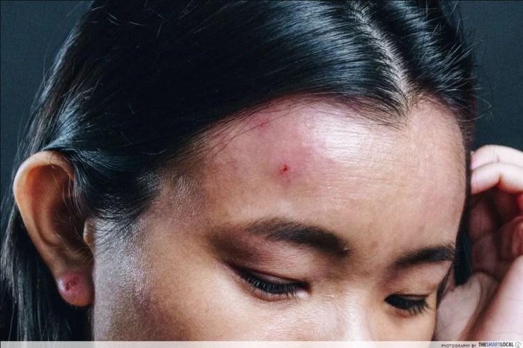 eczema eyelid