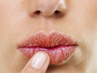 how-to-cure-chapped-lips-01