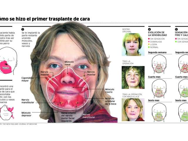 Aurpegiko transplanteak: horrenbesterako al da?