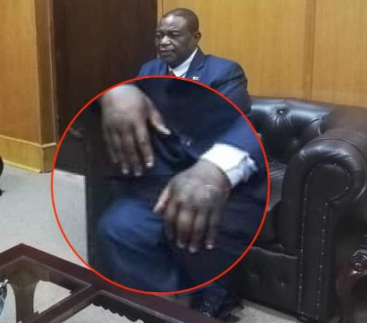 PICTURES: VP Constantino Chiwenga, Wife's swollen hands