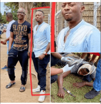 Harare: Mabhara's brother shoots cheating girlfriend, himself on the mouth..PICTURES