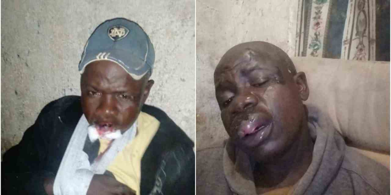 Harare Mabvuku man nearly killed by Zimbabwe soldiers over lockdown curfew
