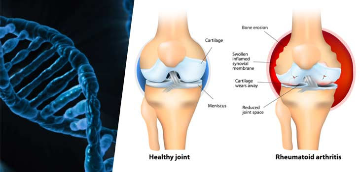 What to do if you have Arthritis?