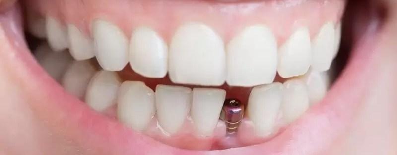 Uśmiech z implantem zębowym