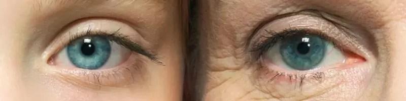 Zmarszczki pod oczami