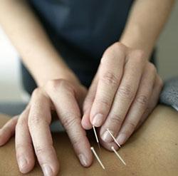 Zylla Acupuncture Tucson